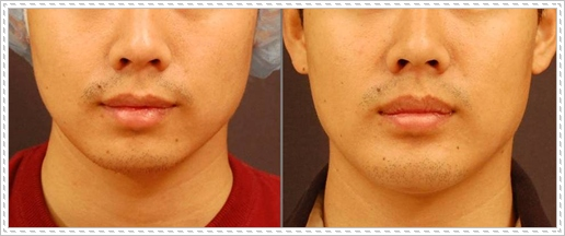 Chin-implant-before