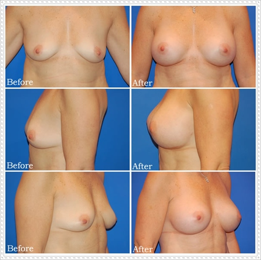 breast aumentation